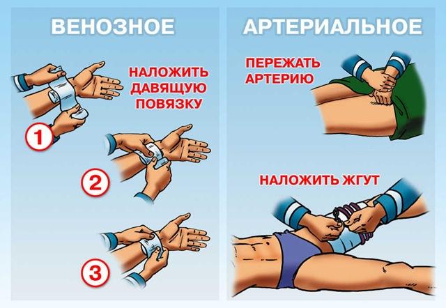 остановка венозного кровотечения